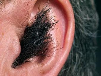 оказывает вытаскивает пробку из уха перекисью водорода можно было купить