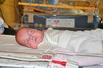 Мертворожденный ребенок фото