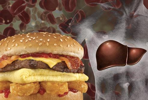 почему повышен холестерин в крови у женщины