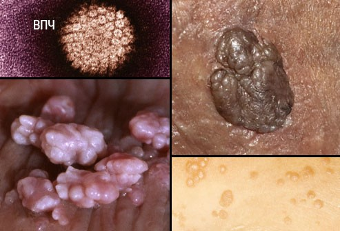 Венирические заболевания пениса