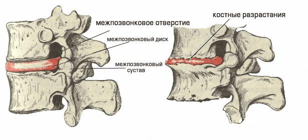 Остеохондроз схемы лечения