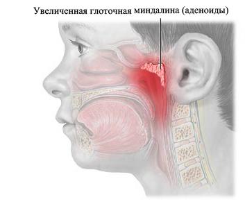 Аденоиды симптомы лечение