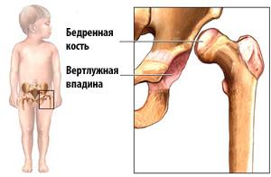 Недоразвитый бедренный сустав у новорожденного инъекции в голеностопный сустав при артрозе