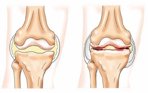 Лечение коленного сустава ортроза пальцы руки сустав горячий