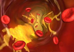 Поток крови по суженному сосуду