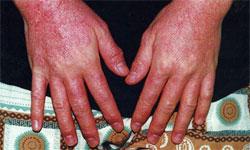 аллергический дерматит симптомы лечение