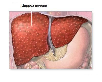 Сдать анализы на гепатит в новгороде