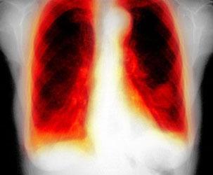 Туберкулез симптомы лечение