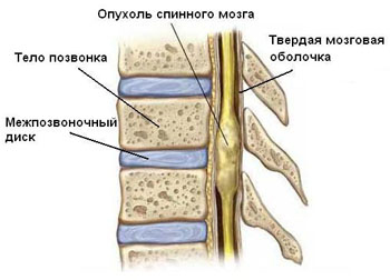 лечение позвоночника и Заболевания позвоночника