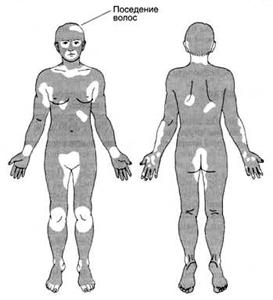 http://medicina.ua/content/images/vitil123.jpg