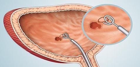 образец описание цистоскопии - фото 7